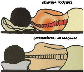 правильное положение на ортопедической подушке.